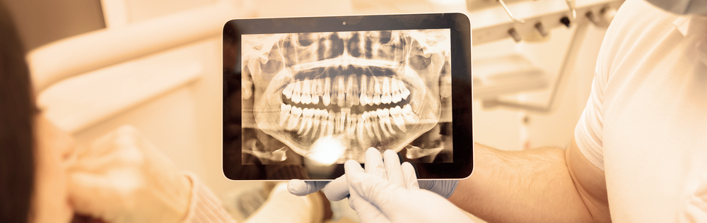 Kosten foto's tandarts
